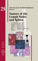 Tumors of the Lymph Node and Spleen